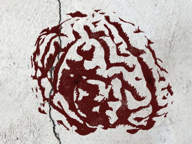 MSI BrainSurgery v1003
